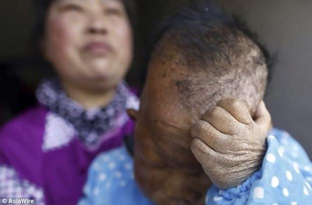 Da của Vương Điền Phương sẽ bị nứt nẻ khi mùa đông sang.