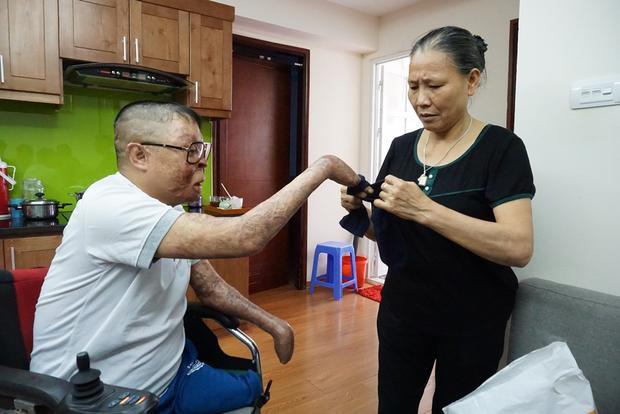 Cánh tay anh Dương được cho vào chiếc tất.