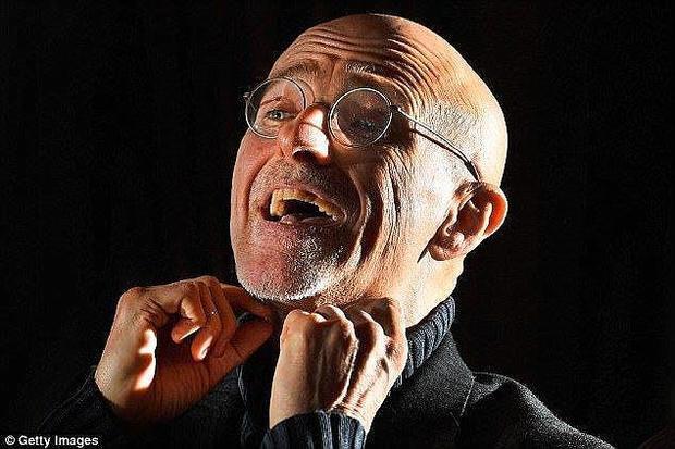 Giáo sư phẫu thuật thần kinh Sergio Canavero.