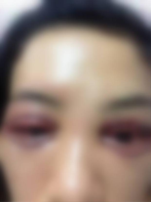 Chị L.A. cho biết, hiện mắt chị đã không chảy máu nữa và đang dần hồi phục.