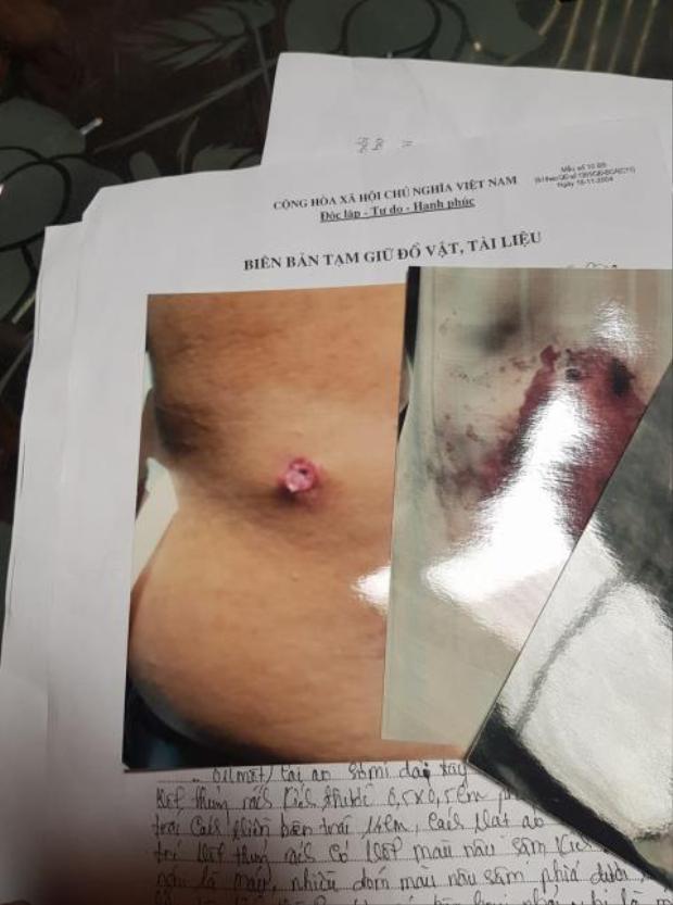 Hình ảnh vết đạn trên người ông Dũng