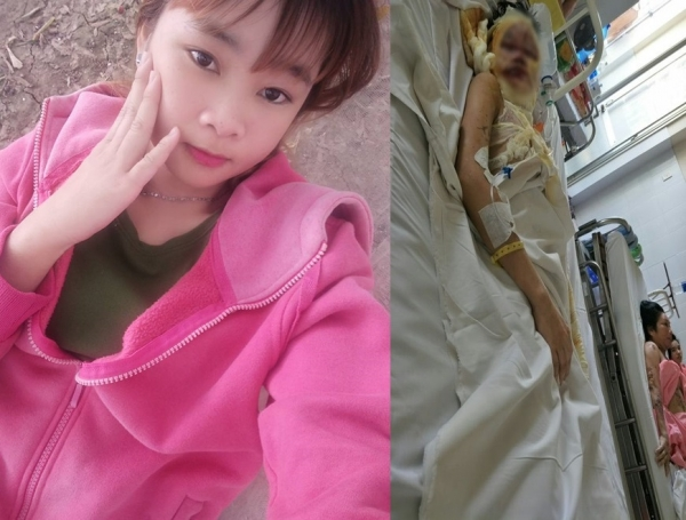 Thiếu nữ 17 tuổi trước và sau bị tạt a xít