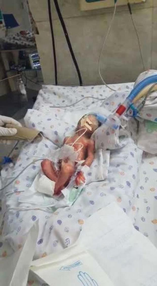 Bé trai bị bệnh viện tuyên bố tử vong sau 22 tuần chào đời.