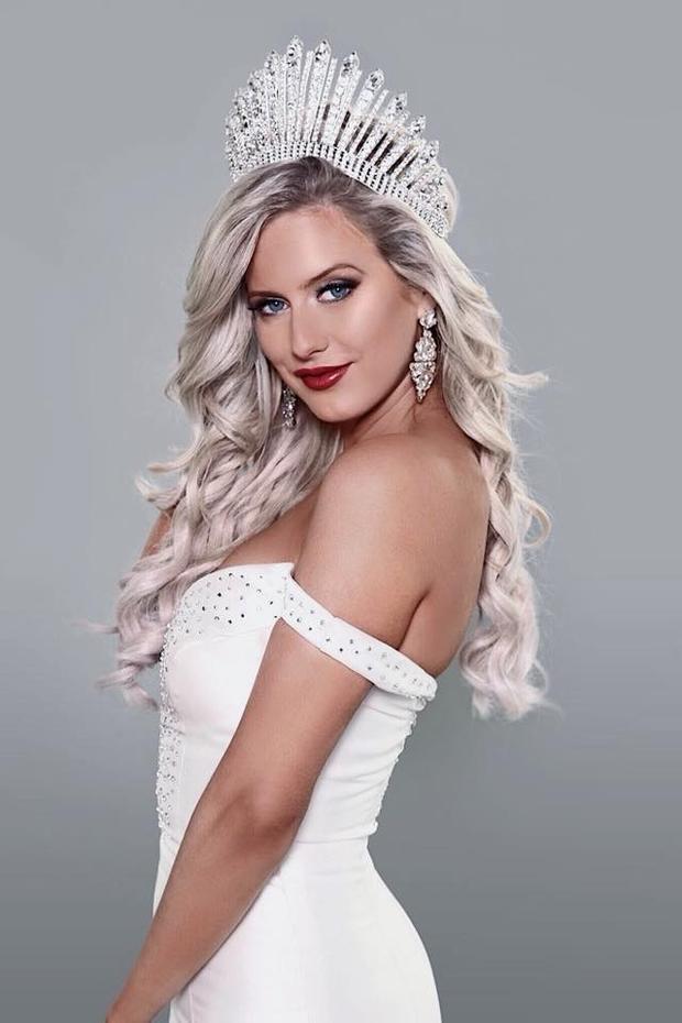 Đại diện Australia 24 tuổi, cao 1m65 sở hữu mái tóc bạc óng ả cùng cặp mắt xanh hớp hồn.