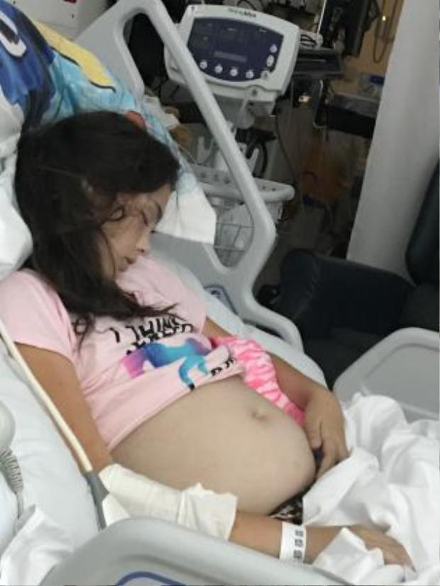 Cô bé mang khối u tới 10kg trong người. Ảnh: News Corp Australia