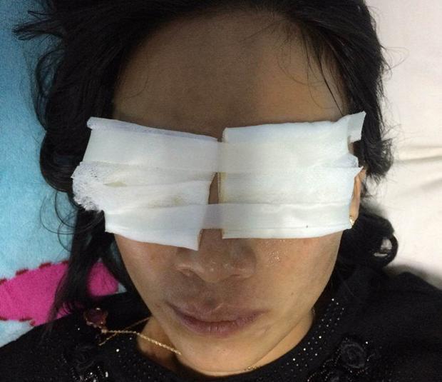 Chị Hằng bị mẹ chồng tạt axit vào mặt khiến 2 mắt bị bỏng kết mạc. Ảnh:CTV.