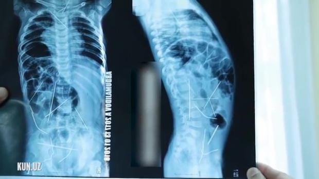 16 cây kim khâu nằm ở các vị trí khác nhau trong cơ thể cậu bé: tim, cổ họng, cột sống, đại trang và bàng quang.