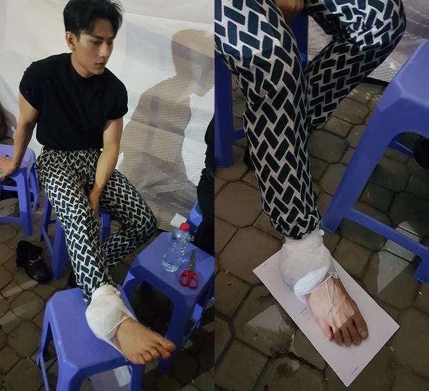 Chấn thương ở chân phải khiến Isaac phải băng bó ngay trước giờ lên sân khấu.