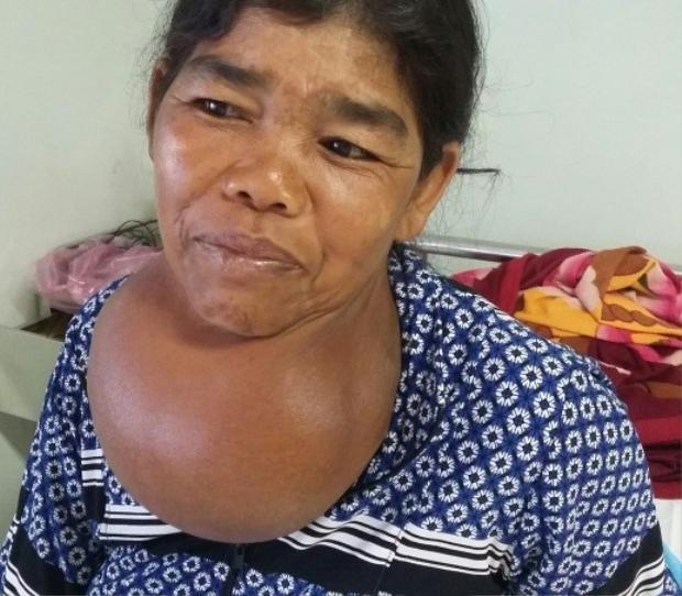 Nữ bệnh nhân mang khối bướu khổng lồ nặng hơn 2,5 kg.