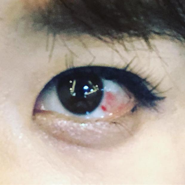 Hình ảnh Hari Won bị đau mắt được cô chia sẻ trước đó.