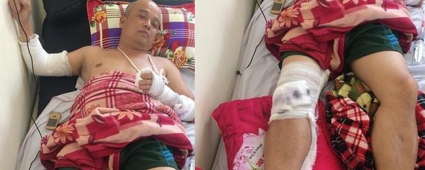Nạn nhân bị thương nặng nhất ở tay và chân.