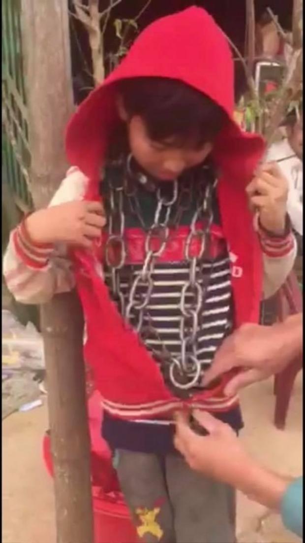 Hình ảnh bé trai bị chú xích cổ gây xôn xao mạng xã hội.