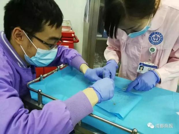 Các bác sĩ phải rất cẩn thận mới gắp được những chiếc xương nhỏ ra khỏi cơ thể ông Zhou.Ảnh: Shanghaiist