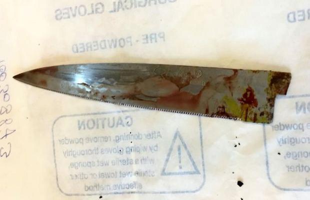 Con dao được lấy ra từ cơ thể Ashok.