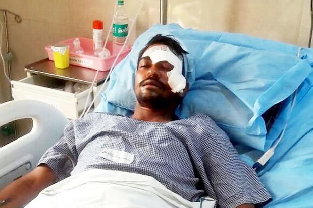 Ashok bị một lưỡi dao đâm sâu gần 8cm, xuyên qua mắt trái.