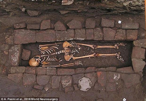 Bộ hài cốt người phụ nữ được khai quật. Ảnh World Neurosurgery