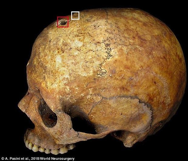 Lỗ khoan trên hộp sọ của người phụ nữ. Ảnh World Neurosurgery