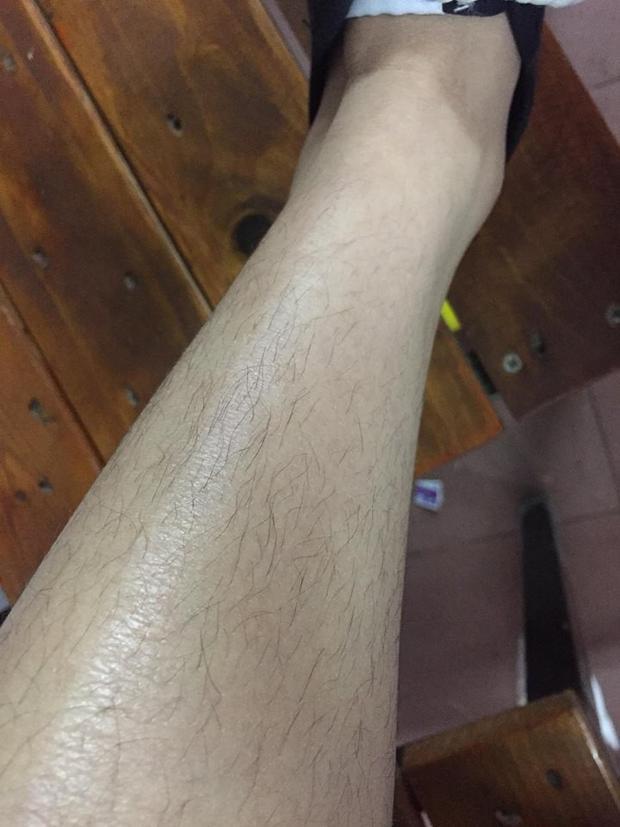Đôi chân lắm lông của cô gái..