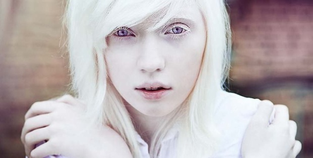 Người bạch tạng có mắt màu tím là do ánh sáng phản chiếu.