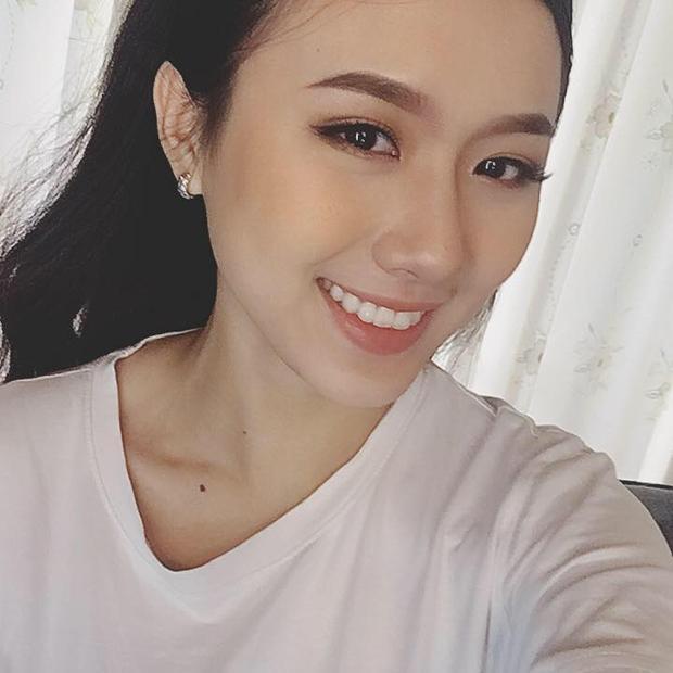 Hàm răng đều thẳng tắp hiện tại của Khánh Linh