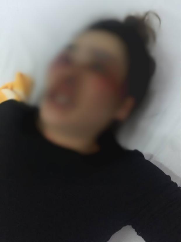 Chị Nh, bị nam sinh viên ở Đà Nẵng đánh nhập viện.