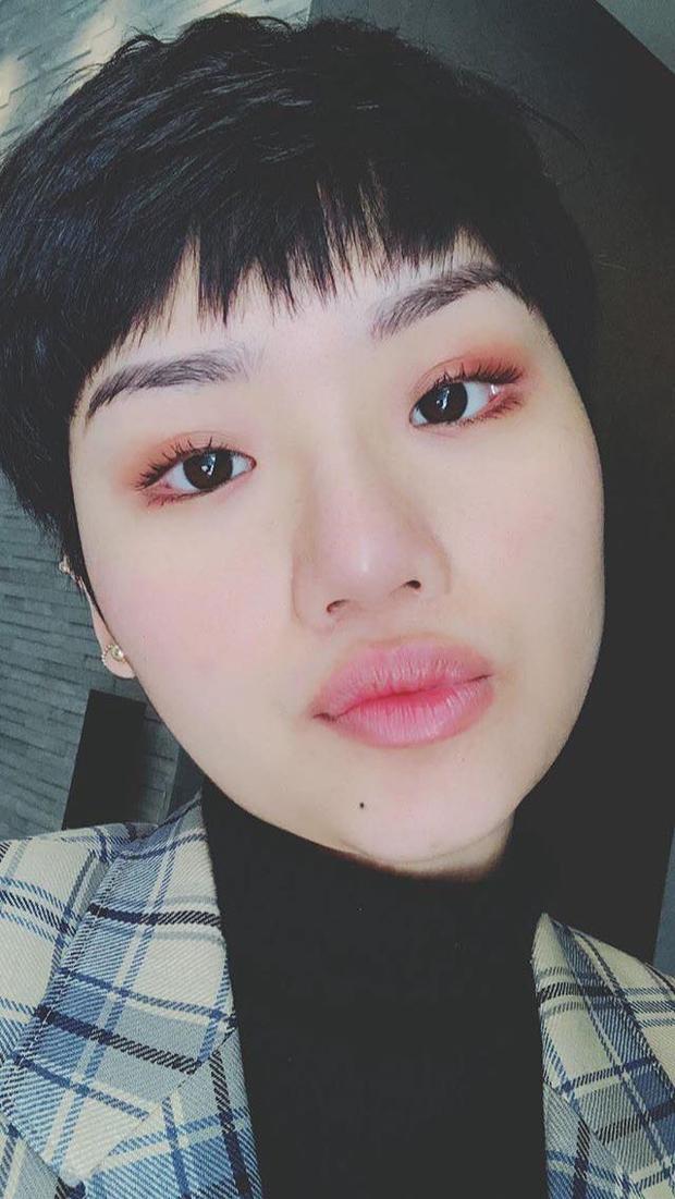 """Đôi môi tều mới """"tậu"""" của Miu Lê khiến nhiều người phải hoảng hồn vì trông như… miếng thịt bò."""