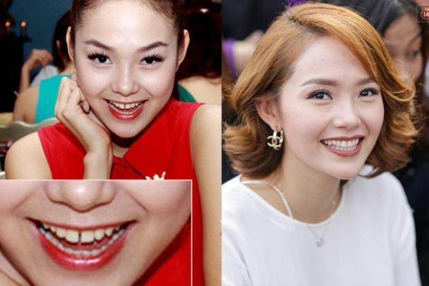 Có lẽ năm 2017 là năm khá thành công đối với Minh Hằng, người đẹp quyết định sửa răng. Hai chiếc răng cửa thưa nhau giờ đây nhìn đã khít và đều hơn, không những thế chiếc cằm nhìn cũng khá tự nhiên, không quá dài hay quá ngắn so với khuôn mặt.