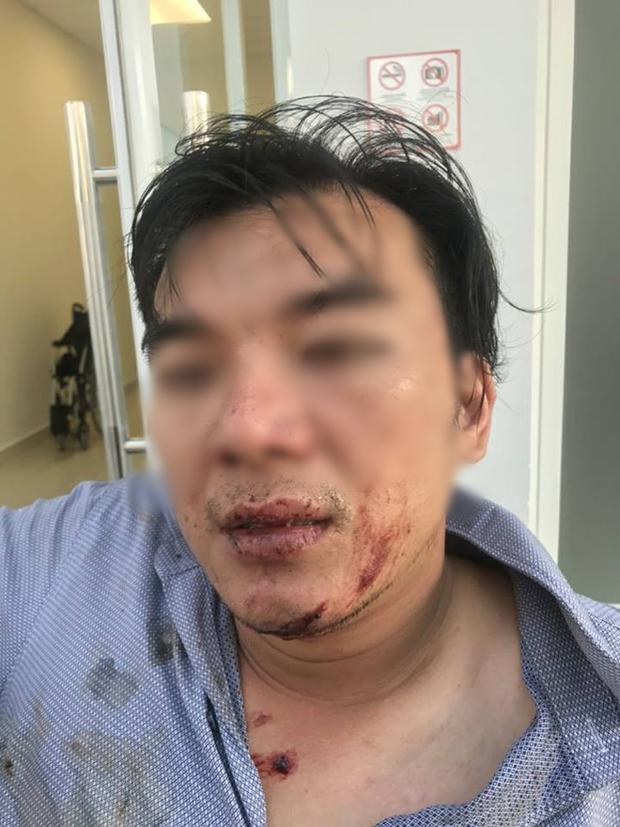 Anh H. đang được điều trị tại bệnh viện trong tình trạng bị đa chấn thương vùng mặt, mang tai, chấn thương não.