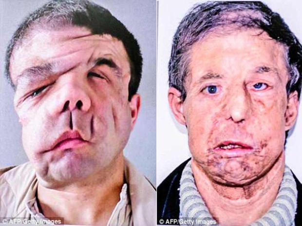 Hai khuôn mặt trước của Hamon. Ảnh AFP