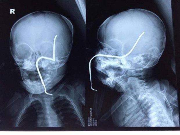 Hình ảnh thanh sắt gỉ văng bắn xuyên má, thủng xương sọ bé gái.