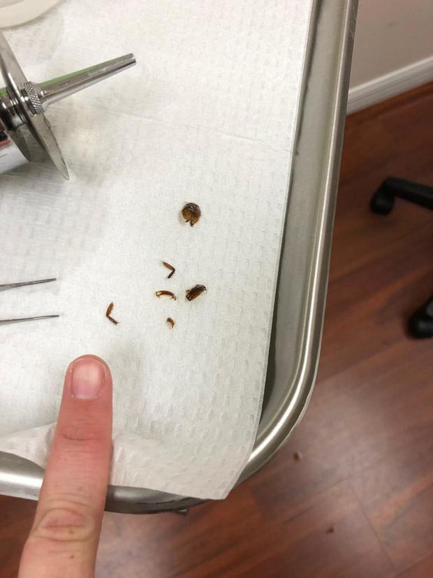 Xác chân gián được lấy ra khỏi tai Katie.
