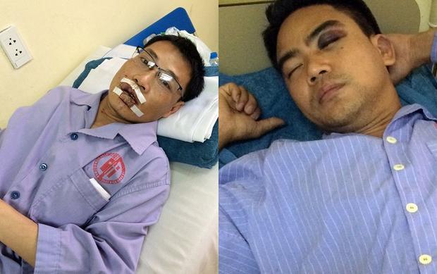 Anh Quang (bên trái) và anh Điệp đang điều trị tại bệnh viện. Ảnh: Báo Quảng Ninh.