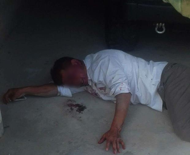 Nạn nhân bị đánh ngất giữa đường