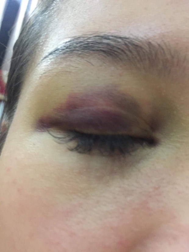 Chị L. bị đánh bầm mắt