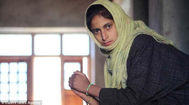 Tawheeda Jan, 21 tuổi, người mắc bệnh phù chân voi.