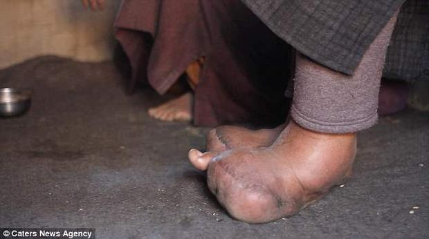 Bàn chân của Jan dài tới 28 cm, rộng gần 28 cm, giống như một quả bóng.