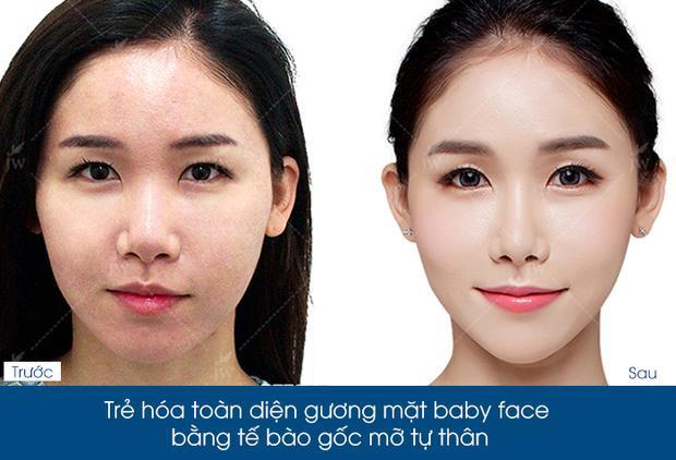 Vùng da được trẻ hóa và mịn đẹp sau khi cấy mỡ mặt Baby Face tự thân.