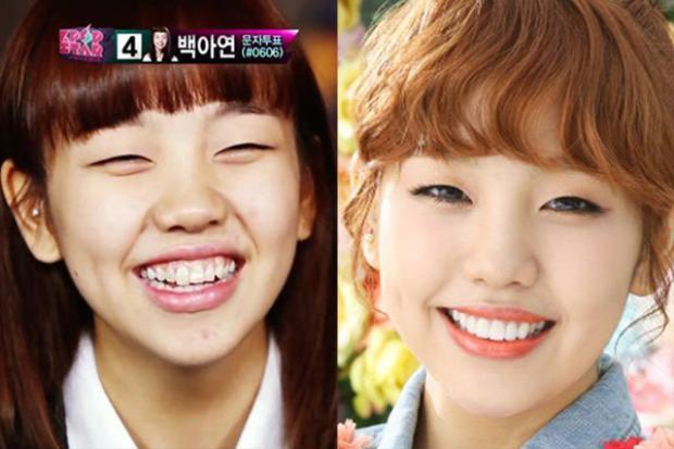 Dù nụ cười tươi tắn luôn xuất hiện trên môi Baek Ah Yeon khi đi thi Kpop Star, nhưng khi nổi tiếng, cô nàng đã ngay lập tức đến gặp nha sĩ để xử lý hàm răng không đều.