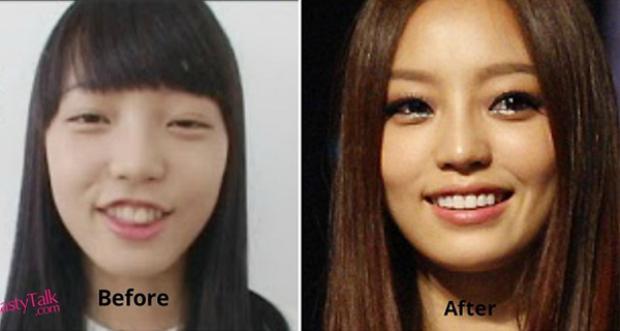 Goo Hara có hàm răng không đều, 2 răng cửa quá to so với hàm trên. Sau khi chỉnh răng, cựu thành viên Kara đã tự tin hơn với hàm răng trắng đều tăm tắp.