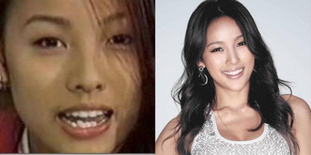 """Không thể tin nổi """"nữ hoàng sexy"""" Lee Hyo Ri cũng từng có hàm răng nhấp nhô thế này."""