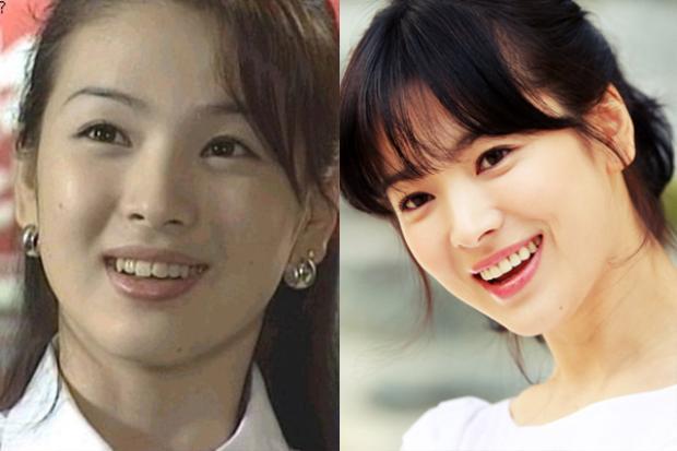 Xinh đẹp từ thuở mới vào nghề, tuy nhiên hàm răng nhấp nhô là điểm trừ chí mạng trên gương mặt của Song Hye Kyo. Người đẹp sau đó đã đi chỉnh răng để có nụ cười hoàn hảo.