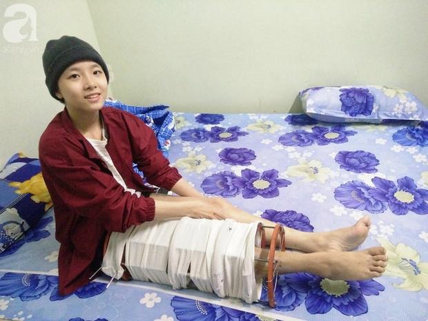 Sau khi bắt bỏ một chân vì ung thư xương vào cuối năm 2017, Mỹ Hiếu tiếp tục chiến đấu với căn bệnh này.