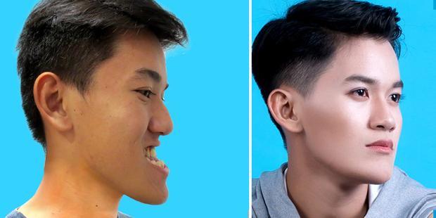 Khánh Du với gương mặt cân đối và đẹp hơn rất nhiều sau phẫu thuật hàm móm.