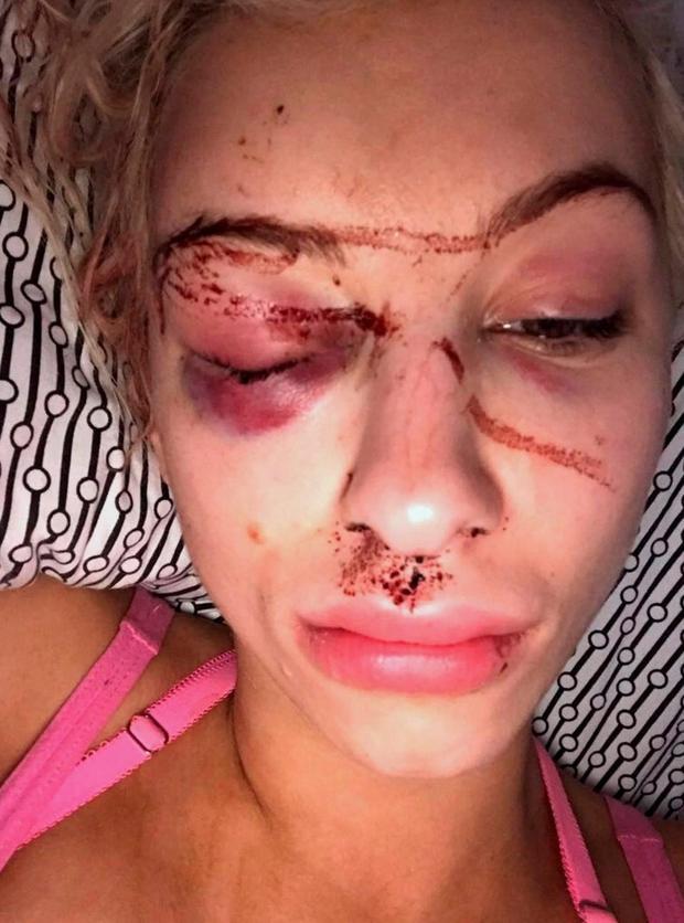 Nữ người mẫu dũng cảm đã cố gắng chụp một bức hình tự sướng với những thương tích rất nghiêm trọng trên mặt. Ảnh: The Sun