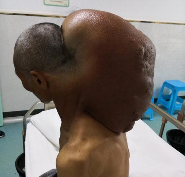 """Khối u """"khủng"""" nặng gần 15 kg trên cổ ông Triệu."""