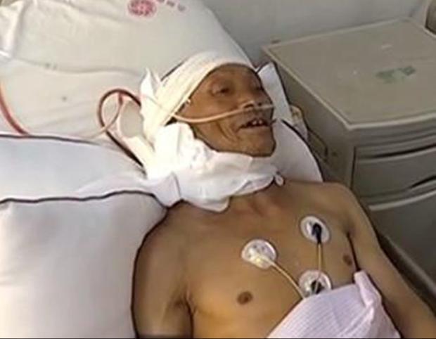 Sau khi trải qua ca phẫu thuật kéo dài 10 tiếng, khối u 15 kg trên cổ ông Triệu đã được loại bỏ 95%.