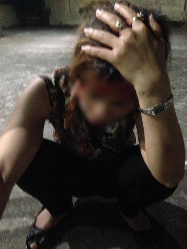 Chị P. bị đánh chảy máu đầu phải nhập viện điều trị.