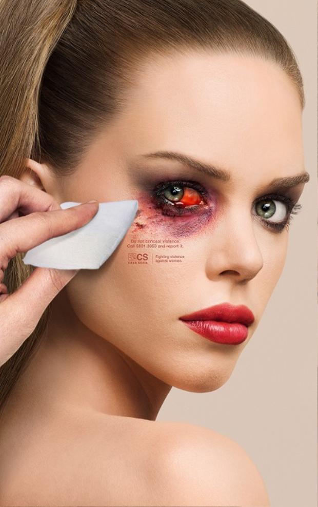 Tích tụ hóa chất khu vực mắt quá lâu có thể dẫn tới mất thị lực vĩnh viễn hoặc các biến chứng
