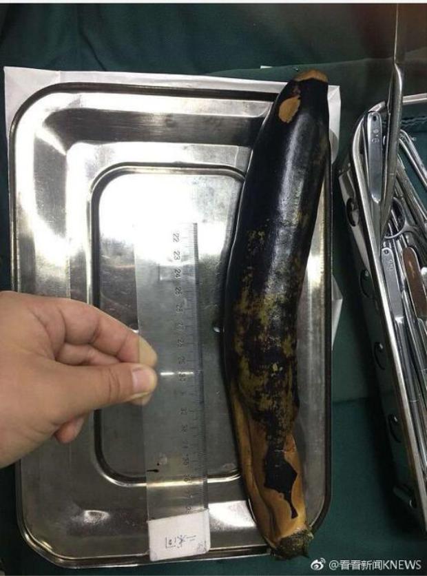 Quả cà tím dài tới 30 cm.
