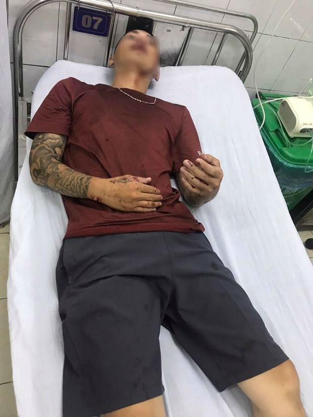 Đặng Đình Đức bị thương đang điều trị tại bệnh viện.